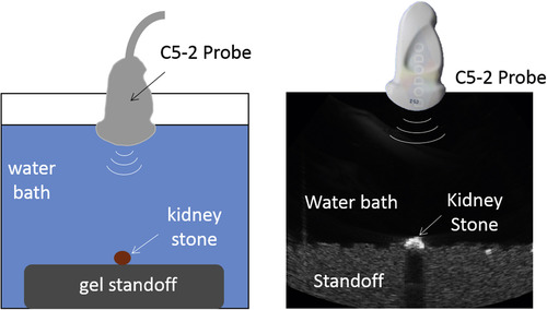Use Of The Acoustic Shadow Width To Determine Kidney Stone Size With
