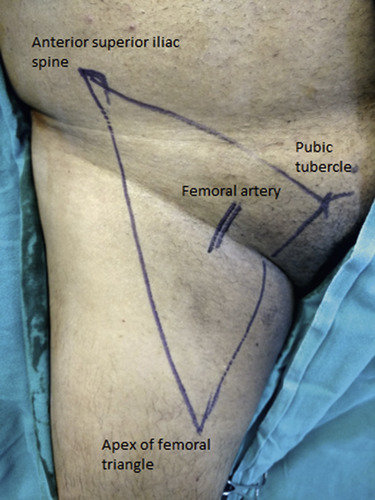 Comparing Outcomes of Robotic and Open Inguinal Lymph Node